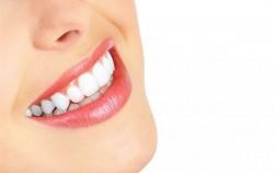 10 savjeta za izbjeljivanje zuba