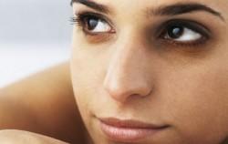 Tamni kolutovi ispod očiju: Uzroci i kako ih liječiti